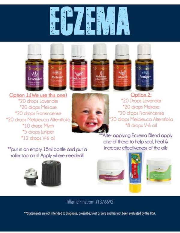 Young Living Essential Oils: Eczema order at www.youngliving.org/heathervargas or learn more about essential oils and ask questions at www.facebook.com/holistichormonalhealth by Sugarbean