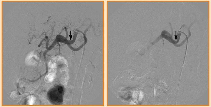 25 best ideas about celiac artery on pinterest upper for Minimal art slideshare