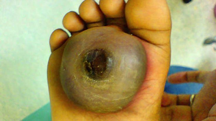 Worst Plantar Warts & Plantar Wart Treatment