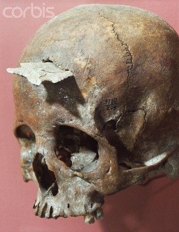 cráneo de una mujer Anasazi que data del Período Pueblo de la civilización americana, descubierta con la punta de flecha incrustada que la mató en AB.