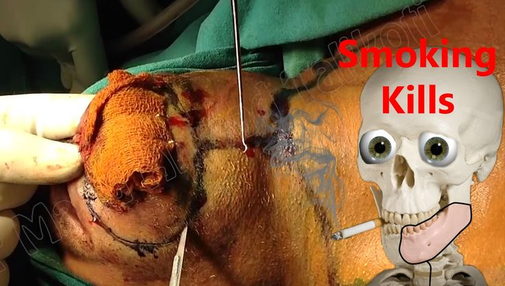 Oral Cancer Removal (Commando Surgery) by Dr Majid Ahmed Talikoti