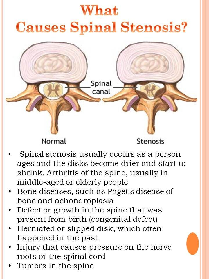 spinal stenosis lumbar region