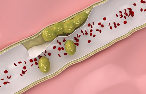 """Tener las arterias tapadas puede causar, por ejemplo, un ataque cardíaco. Por ello es tan importante mantenerlas """"limpias"""" y """"destapadas"""" para una mejor calidad de vida."""