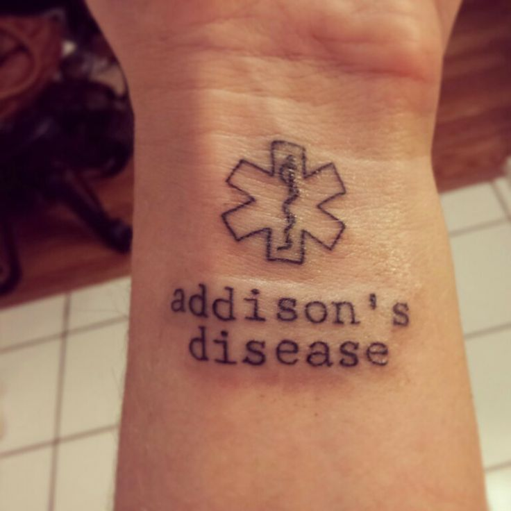 I think I might get this!!!!'  Addison's disease medic alert tattoo