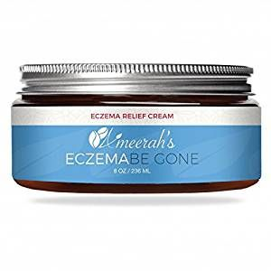 Eczema Be Gone Body Moisturizer Cream – 8 ozs – 100% Natural – Great for Psoriasis, Rashes, Rosacea, Dry Skin & Normal Skin Review