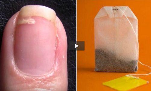 Un rimedio davvero utile e geniale per riparare quella fastidiosa unghia spezzata a metà, che rovina tutta la manicure. Basta una bustina di tè e della colla per le unghie e il risultato è perfetto! Ritaglia un parte della bustina, svuotata in precedenza, poi applica la colla sulla parte spezzata dell'unghie e applica la striscia. [...]