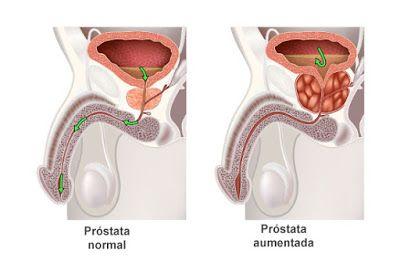 Blog Colaborativo para Mais Medicos: Hiperplasia Prostática Benigna en APS