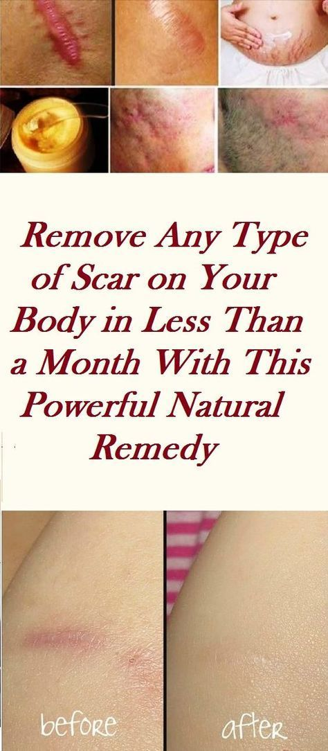 Remove Any Type of Scar on Your Body in Less Than a Month With This Powerful Natural Remedy