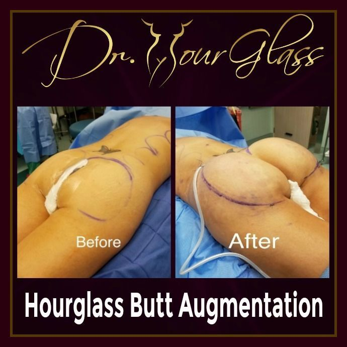 The Hourglass Butt Augmentation procedure by Dr. Hourglass will surely improve the size and shape of your rear ends and create a great projection which will resulted into an hourglass shape that you can surely be proud of.