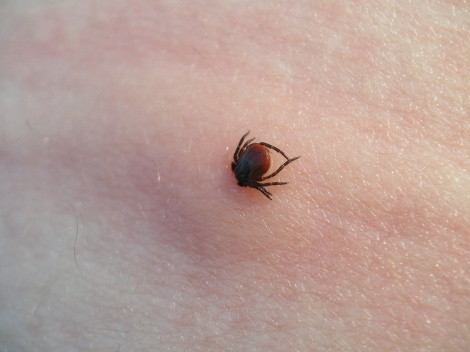 """Lone star ticks are an """"aggressive"""" species, but scientists are having a hard time proving a causal relationship between the tick bites and the meat allergies. What they do know: """"blood levels of antibodies for alpha-gal, a sugar found in beef, lamb and pork, rise after a single bite from the lone star tick.""""    The mammal meat allergies are striking those in southern and central parts of the country"""