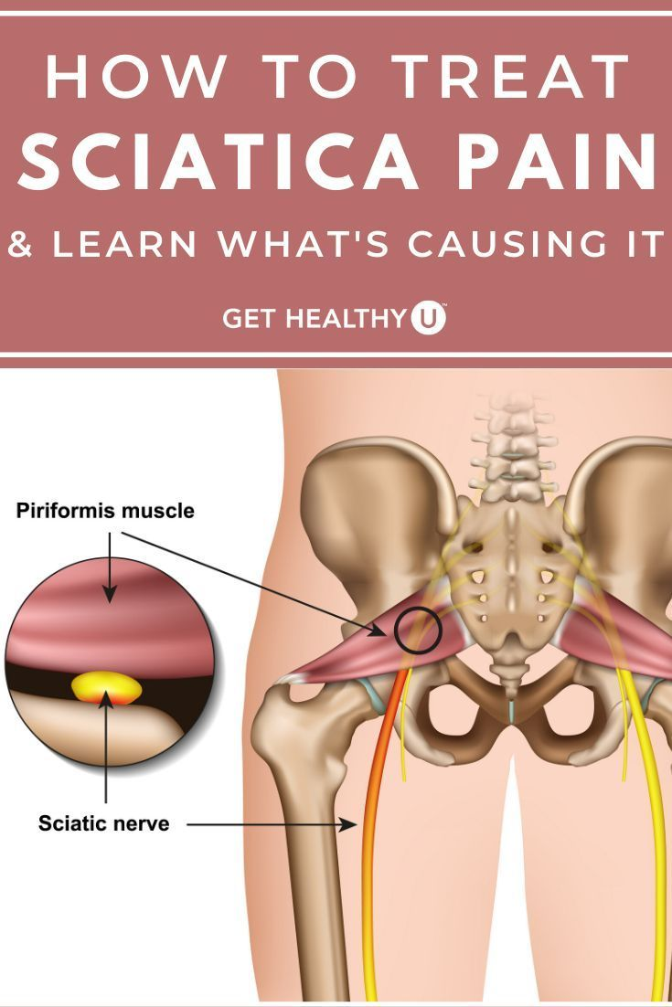 35++ Sciatic nerve in hip trends