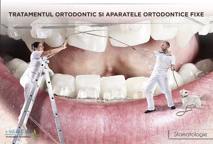 Ortodontia reprezinta ramura stomatologiei care se ocupa cu diagnosticarea, prevenirea si corectarea neregulatirtatilor dintilor si fetei. De cele mai multe ori, ortodontia presupune aplicarea unor dispozitive speciale fixe sau mobile. http://www.i-medic.ro/stomatologie/tratamentul-ortodontic-si-aparatele-ortodontice-fixe