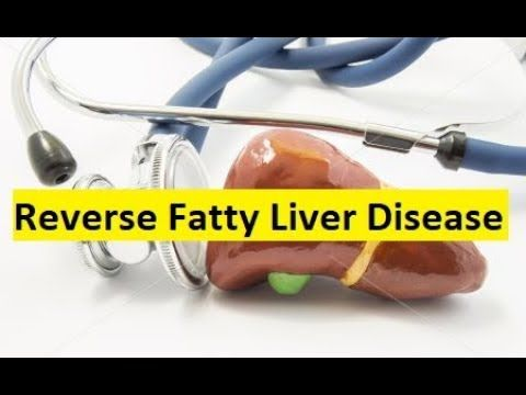 Reverse Fatty Liver Disease With Fatty Liver Diet Guide - YouTube