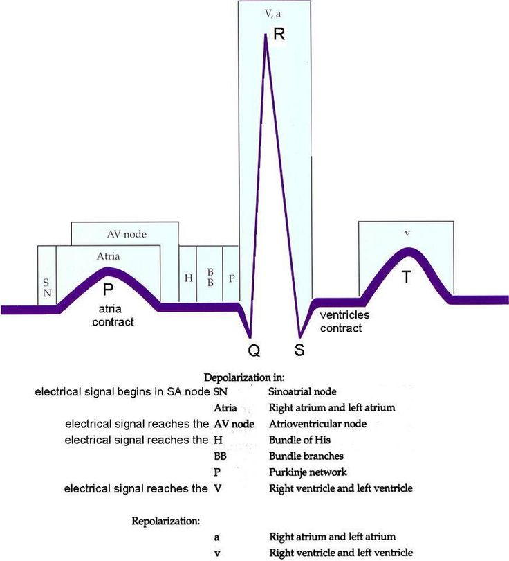 That EKG...now lets not talk about those patterns! #mdstudentproblems