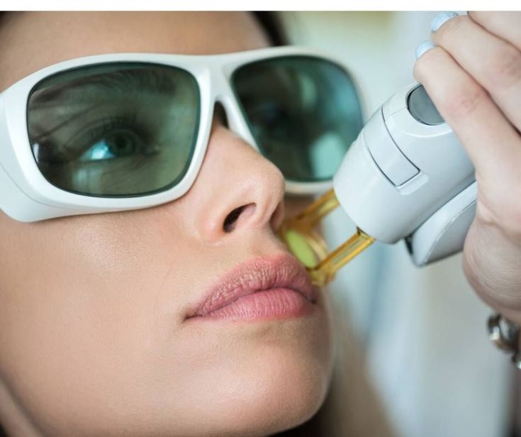 Experience matters! We have performed more than 20,000 medical laser hair removal procedures over the last 15 years. We constantly invest in the latest technology so our patients can get the best results, safely. Message us with any questions or to schedule your private laser hair removal appointment today. #laserhairremoval #hairremvoal