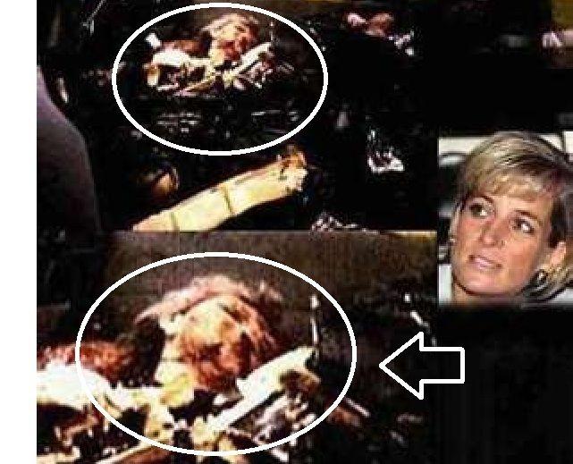 Princess Diana Photos Of Car Accident