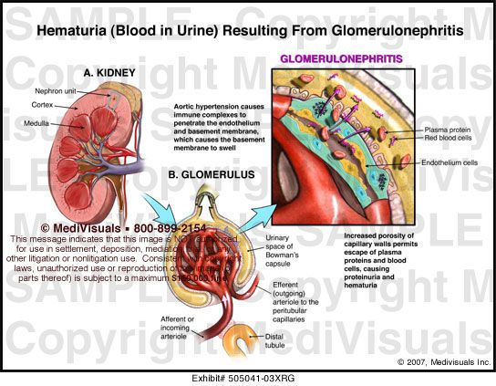 44 best images about Blood In Urine (Hematuria) on ...