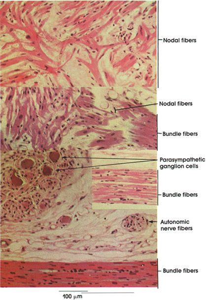 Atrioventricular Node and Bundle microscopy
