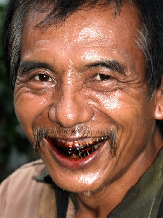 Dentaltown - The effects of betel nut on the teeth often show red stained lips and teeth from constant chewing of betel nut, which is a natural stimulant like nicotine. Betel nut is another term for areca nut. Using betel nut has many harmful effects on health and is carcinogenic to humans.