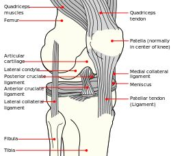 The anterior cruciate ligament (ACL) is a cruciate ligament which is one of the four major ligaments of the human knee. In the quadruped stifle (analogous to the knee), based on its anatomical position, it is also referred to as the cranial cruciate ligament. The ACL originates from deep within the notch of the distal femur. Its proximal fibers fan out along the medial wall of the lateral femoral condyle.