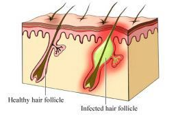 Infected Ingrown Hair – How to Overcome This Problem