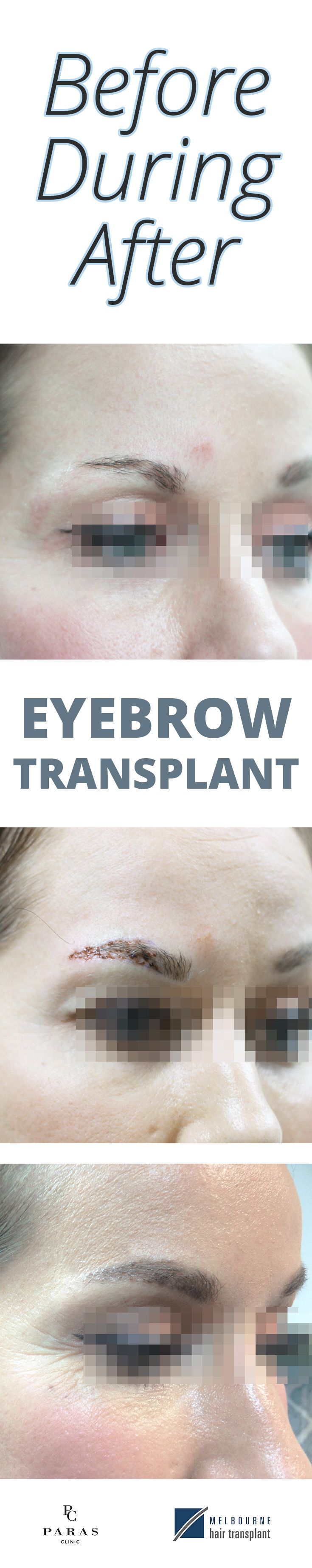 Eyebrow transplants: Before, During and After