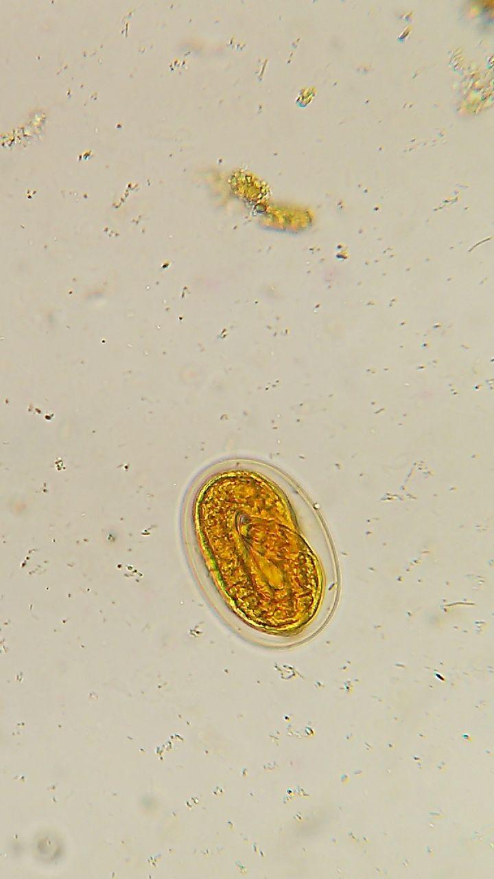 Huevo larvado de Uncinaria