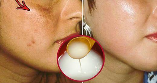 rimedi eliminare macchie viso