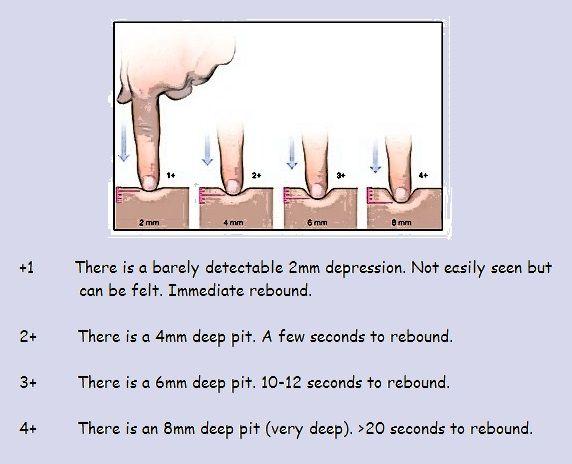 The framework of grade swelling