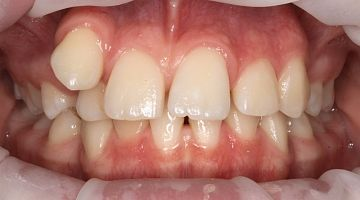 """Лечение и удаление зубов. Примеры работ специалистов стоматологической клиники Ортодонт. """"В процессе № 2"""""""