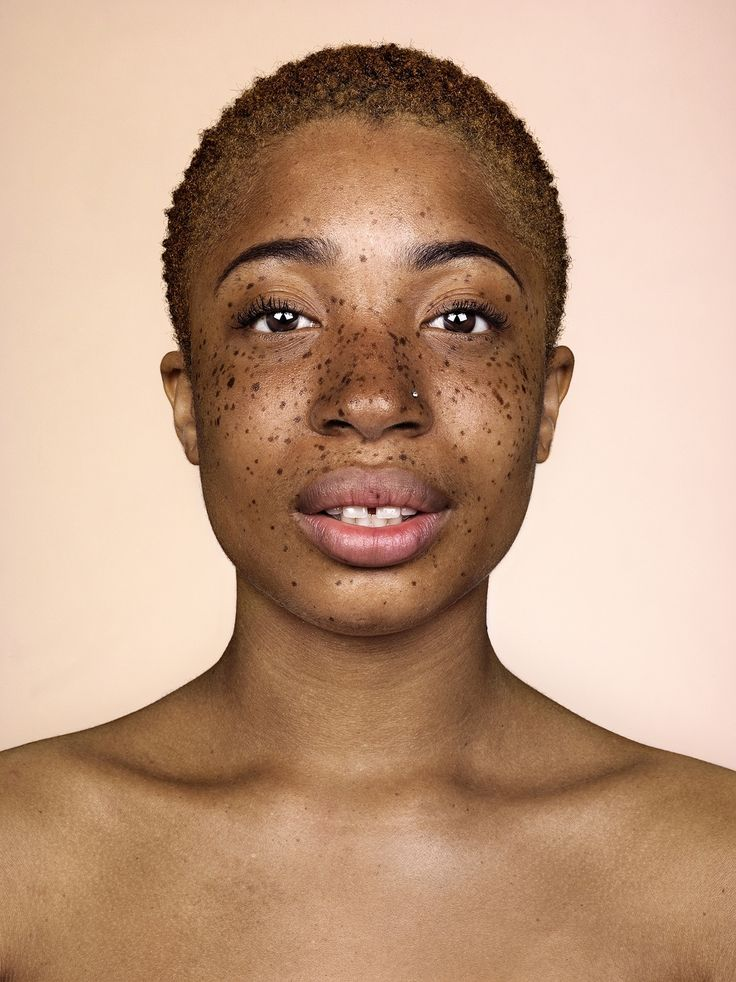 The photographer behind Somerset House's Beard exhibition returns with another set of bold portraits – and this time, freckles take centre stage
