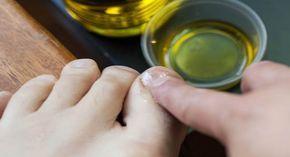 L'onicomicosi, cioè una micosi delle unghie, può essere un problema imbarazzante e difficile da eradicare. [Leggi Tutto...]