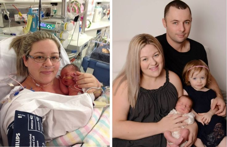 An incredible journey from a survivor of Placenta Accreta on re-lactation