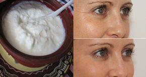 Drogie kosmetyki nie zawsze są gwarancją, że Twoja skóra będzie zmarszczek. Czasami można znaleźć bardziej efektywne rozwiązanie, które znajduje się w Twojej kuchni. Weźmy na przykład słynną indyjską aktorkę, piosenkarkę i byłą królową piękności świata, Priyanka Chopra. W tym artykule zaprezentujemy jej proste rutynowe zabiegi kosmetyczne, które pomagają jej mieć promienną iwolną odzmarszczek skórę. Co najważniejsze ona wykorzystuje tylko naturalne składniki, które nadają się do wszystkich…