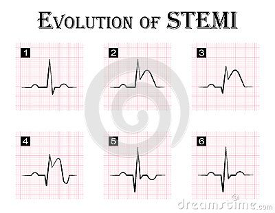ECG Of Evolution ( Step By Step ) Of STEMI Stock Vector - Image ...