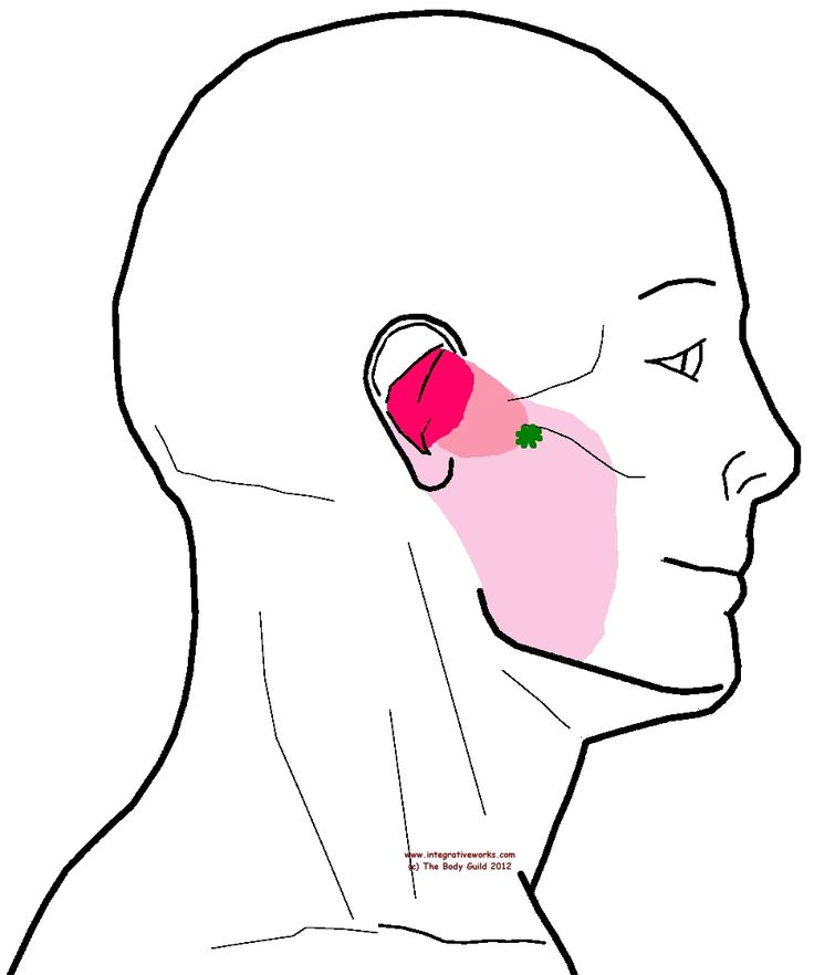 10 best Ear - Trigger Point Patterns images on Pinterest | Massage ...