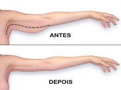 Exercícios eficazes para acabar com a gordura e flacidez nos braços