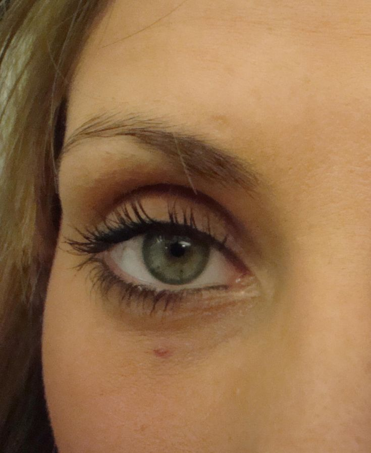 Leanne's eye after Fong Artistic Semi-permanent eyeliner Makeup. No more smudge liner.