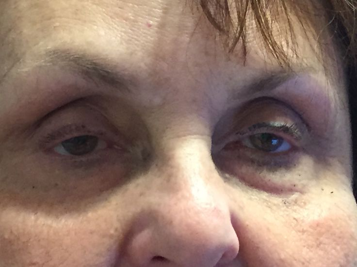Bubbie treated only under her left eye with #InstantlyAgeless. She also used it to get ready for 50th high school reunion.