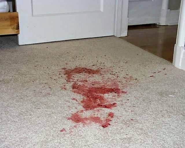 8 Best Blood Stains Images On Pinterest Remove Blood