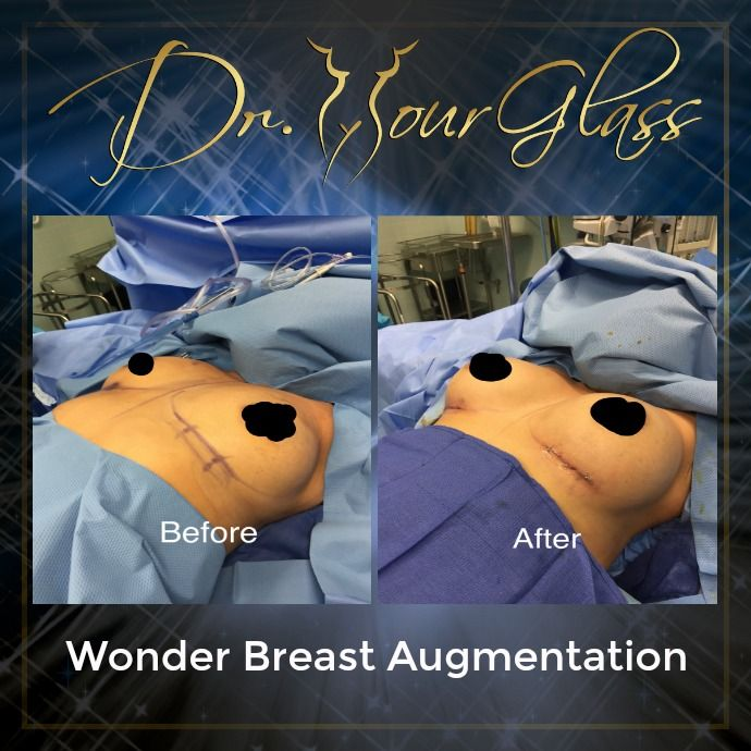 Some women wish they have bigger boobs because this alone can boost your self-confidence. Don't ever wonder why there are women out there who are interested in undergoing Wonder Breast Augmentation because this procedure can restore or increase the volume of your breasts.