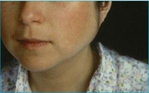 Le syndrome de Gougerot-Sjögren :De la sécheresse de la bouche ou des yeux à la maladie auto-immune