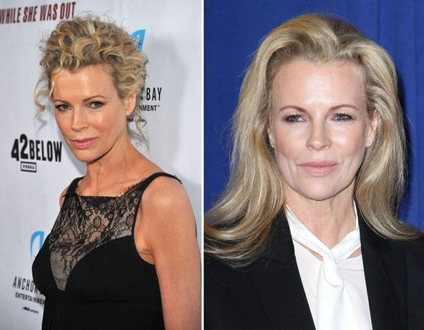 #LiposculptureBeforeandAfter-Kim Basinger before & after plastic surgery – #Basi…