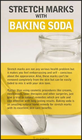 Get Rid of Stretch Marks with Baking Soda  Does Baking Soda work on Stretch Marks?  Baking soda not only used for cooking purpose but it has many excellent properties, which help to clear many health and beauty problems. Here we are going to know how it works to get rid of stretch marks.