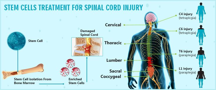 Stem cells treatment for spinal cord injury at Regennmed! They provide stem cells treatment for spinal cord injury by their experienced doctor in Delhi. Contact at +91-8527391966 for fixed your appointment.