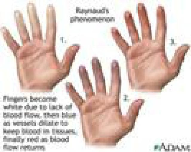 Raynaud's Syndrome - Causes, Symptoms and Treatment