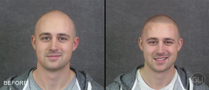 Técnica de micropigmentação do couro cabeludo é permanente, mais barata do que implante capilar e pode te deixar com visual de Jason Statham