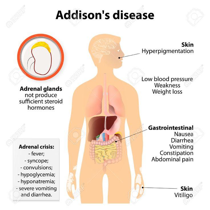 MORBO di ADDISON Cause. Ca. il 70% dei casi del m. di Addison negli USA, è dovuto ad atrofia idiopatica della corteccia surrenale, causata probabilmente da processi autoimmuni. I restanti casi sono dovuti alla distruz della ghiand surrenalica dovuta a granulomi (p.es., TBC), tumori, amiloidosi, emorragia, o necrosi infiammatoria. L'ipocorticosurrenalismo può derivare anche dalla somministrazi di farmaci che bloccano la sintesi corticosteroidea (p.es., il chetoconazolo e l'anestetico…