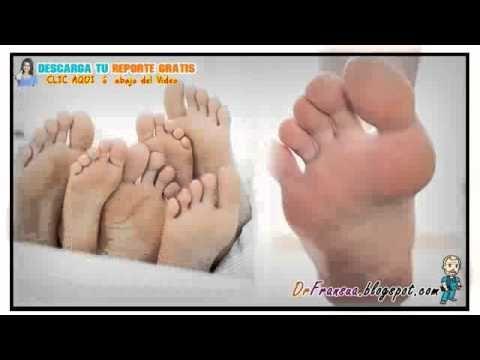 Las uñas en las manos sloyatsya que curar
