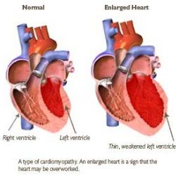 Health Care A to Z - http://www.healthcareatoz.com/9-common-symptoms-of-enlarged-heart/